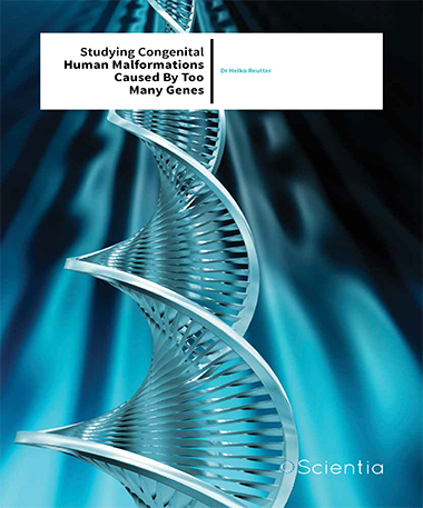 Dr Heiko Reutter – Studying Congenital Human Malformations Caused By Too Many Genes